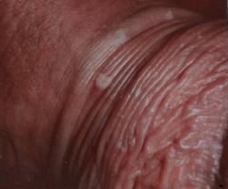 Lesioni maculari del pene evidenziate alla peniscopia in paziente con HPV DNA positivo per HPV ad alto rischio (Archivio fotografico del Dott.Giuseppe Scaglione )